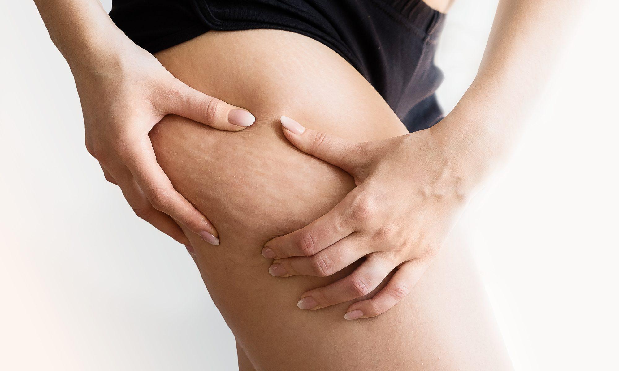 celulitis-edematosa-tratamiento